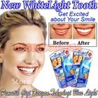 Pemutih gigi revolusioner White Light Pemutih Gigi alat pemutih gigi white light 085290001654