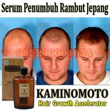 obat botak rontok Serum Penumbuh rambut tonik rambut kaminomoto asli jepang 085290001654 Pin Bbm : 235FFCCD