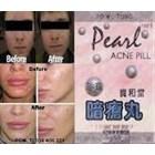 Pearl Acne Pil Jerawat Alami - Paling Ampuh Dan Cepat Untuk Menghilangkan Jerawat Flek