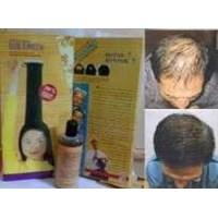 Jual Obat Penumbuh Rambut Botak Rontok Herbal Alami Asli Cara Menumbuhkan Rambut Kepala Dan Obat Menyuburkan Kulit Kepala Secara Alami Suplemen dan Vitamin Hair Tonikum