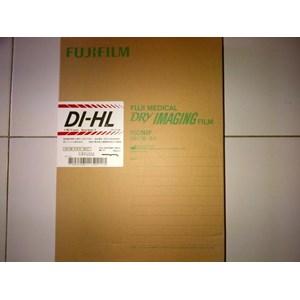 Fuji DIHL XRay