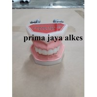 model gigi lunak