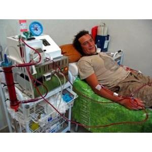 Terapi Ozon Darah EBOO By Bali