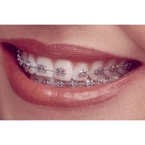 Perawatan Estetik By PT PT. Orange Dental