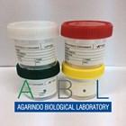 Specimen Container Urine Container 2