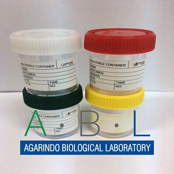 Specimen A Urine Container Container